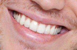 diş eti sağlığı