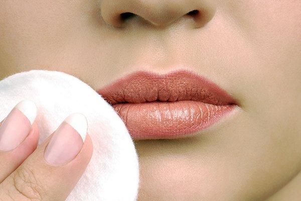 dudak çatlaması